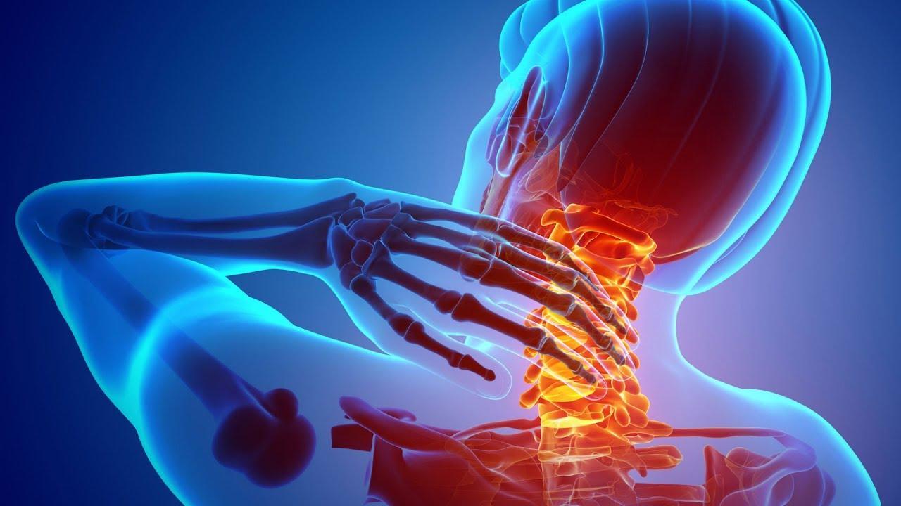 Dor no Pescoço - Causas e Tratamento